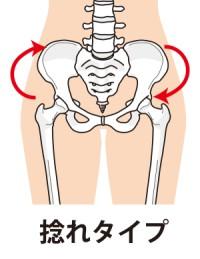 骨盤捻じれタイプ