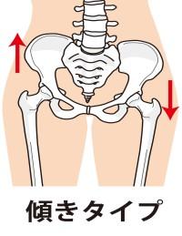 骨盤傾きタイプ